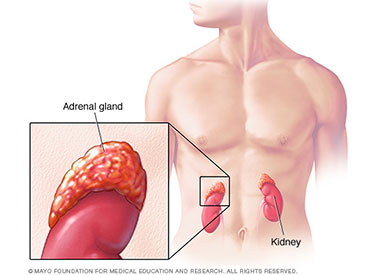 Infusion-Health-IV-Lounge-Adrenal-Gland-Dysfunction-small