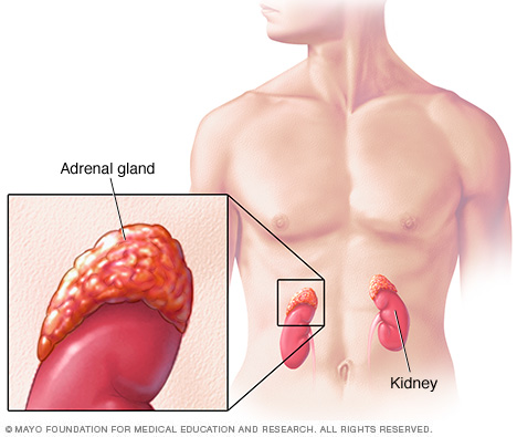 Infusion-Health-IV-Lounge-Adrenal Gland Dysfunction