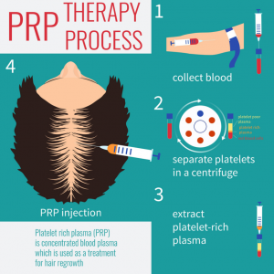 Infusion-Health-IV-Lounge-PRP-Hair-Loss-Treatment-Cover