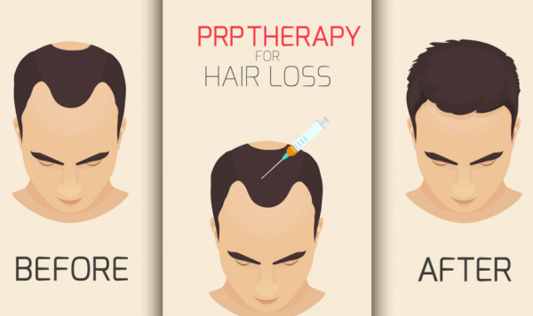 Infusion Health IV Lounge PRP Hair Loss Treatment